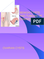 Ovarian Tumors and Cysts
