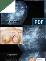 Deteccion de Cancer o Celulas Tumorales