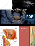 tumor payudara-Aldi.ppt