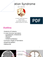 Brain Herniation Syndrome