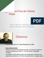 Aplasia Pura de Células Rojas MIA