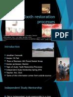 tooth restoration processes midterm presentation