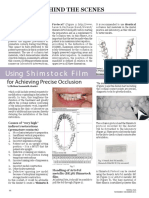 """""""Using Shimstock Film for achieving precise occlusion"""""""