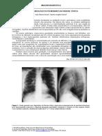 Achados Radiológicos Pulmonares Da Fibrose Cística