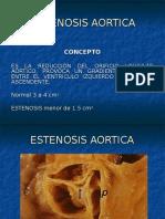 estenosisaortica-110407185435-phpapp02