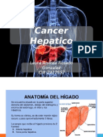 Cancer Hepatico