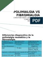 POLIMIALGIA VS FIBROMIALGIA