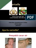 Vaksin Varicella