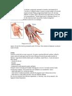 Boala Dupuytren Apare CA Urmare a Ingrosarii Anormale a Tesutului Subcutanat de La Nivelul Palmelor