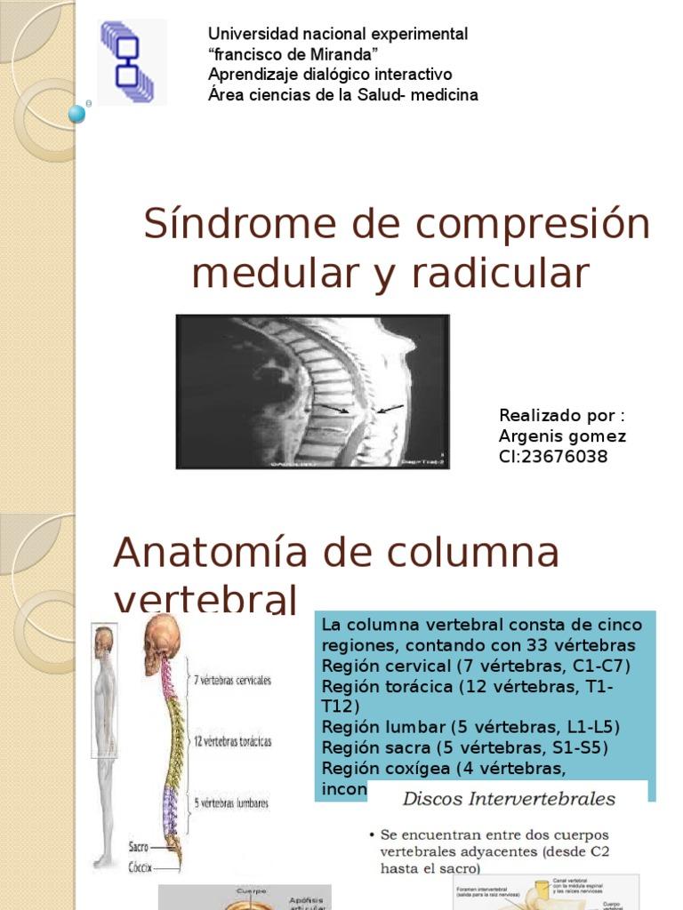 Síndrome de Compresión Medular y Radicular