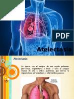 atelectasia.pptx