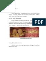 Enamel Hipokalsifikasi Ciri Khas Dan Radiografi
