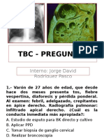 Tbc - Preguntas