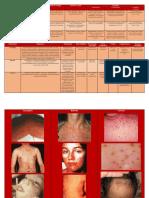 Cuadro Diferencial de Enfermedades Exantematicas