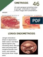 Kuliah Endometriosis II 03