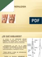 artrosis generalizada