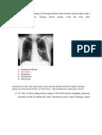 Tugas Radiologi