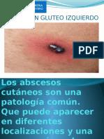 ABCESO-EN-GLUTEO-DIAPOSITIVAS-LUZMILA-SANCHEZ-RIVERO.pptx