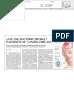 Tratamiento integral de la parálisis facial en el Hospital La Milagrosa