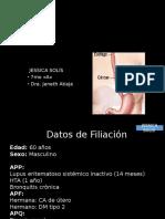 Caso Clinico CA Esofago