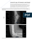 Normal X-ray.docx