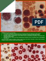 Atlas Hematology 2nd Ed