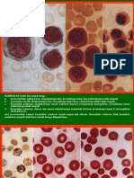 Atlas Hematology 2nd Ed