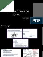 Malformaciones de tórax
