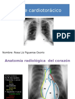 Diagnostic o Corazon