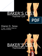 Baker's Cyst Report