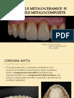Coroana metalo-ceramica si coroana metalo-compozit.pdf