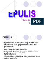 EPULIS.ppt