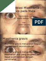 Manifestasi Miasthenia Gravis pada Ocular.pptx