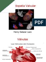 Cardiopatía Valvular