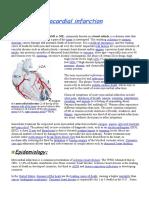 8025842-Myocardial-Infarction.doc