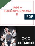 IAM + EDEMA DE PULMON PARCIAL