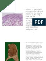 kuliah kanker paru