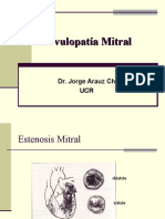 Valvulopatia Mitral