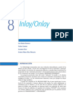 Inlay - Onlay Espanhol