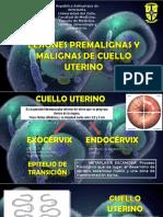 Exposicion de Lesiones Premalignas