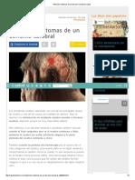 Atención_ Síntomas de Un Derrame Cerebral _ Salud