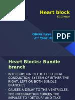 Heart Block Report