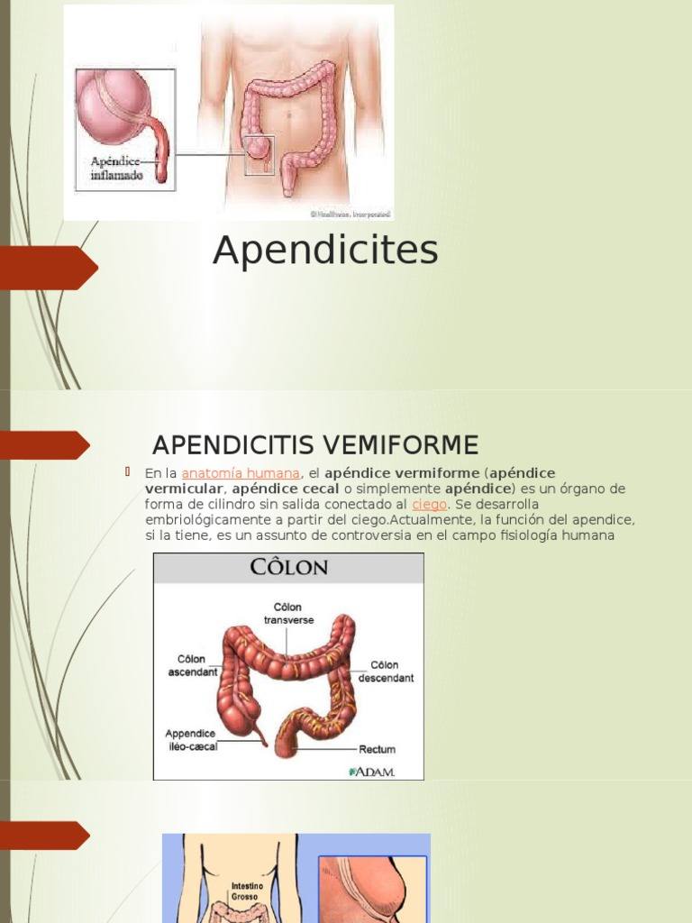Apendicites