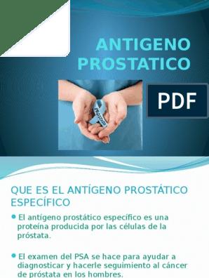 prueba de densidad de antígeno prostático específico
