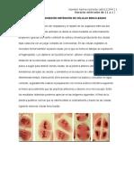 Citocinesis Inhibición Obtención de Células Binucleadas