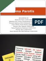 PPT BLOK 21 sk 8 Carcinoma parotis