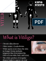 KenaLeen Cream and Vitiligo