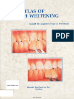 Color Atlas of Tooth Whitening