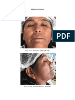 Perio-cirgia Granuloma Piogeno
