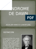 Sindrome de Dawn